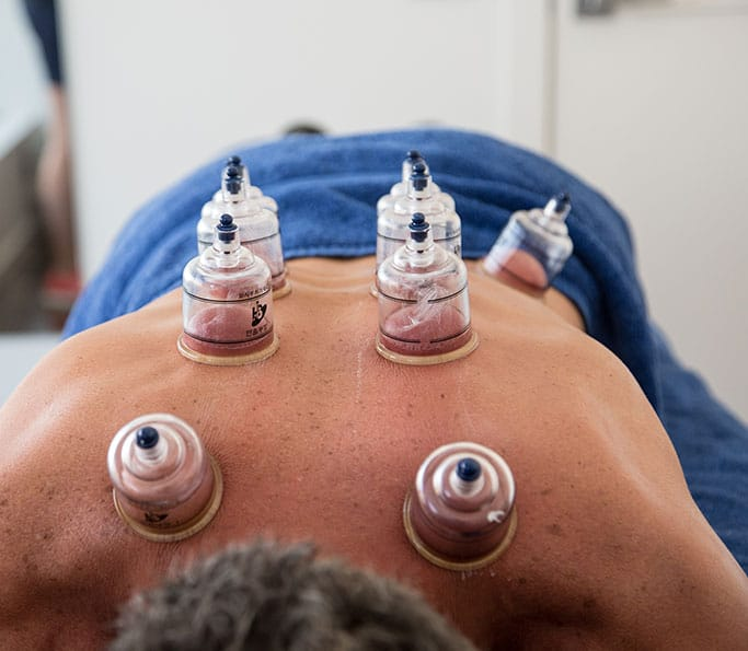 cupping treatment brunswick
