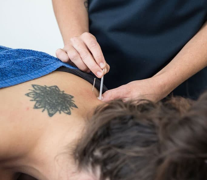 dry needling treatment brunswick