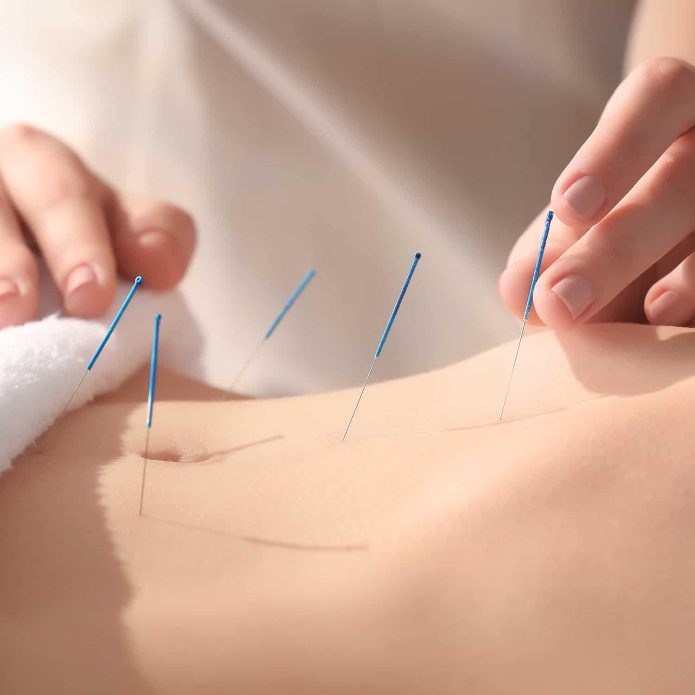 dry needling treatment brunswick